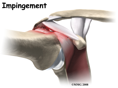 shoulder impingement treatment